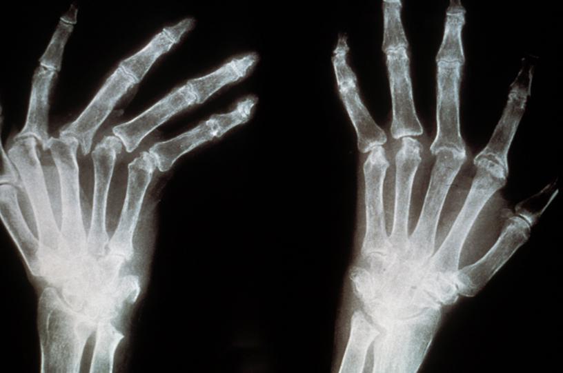 polyarthrite rhumatoïde par Jean-Jacques Demri