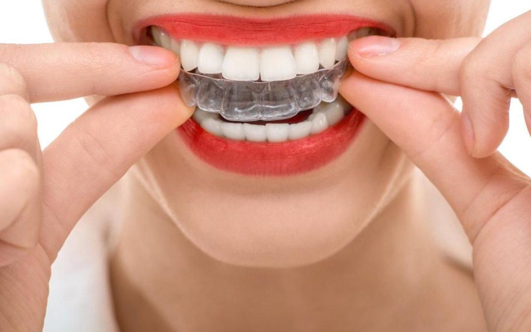 Tout savoir sur la colle dentaire pour dentier et appareil dentaire